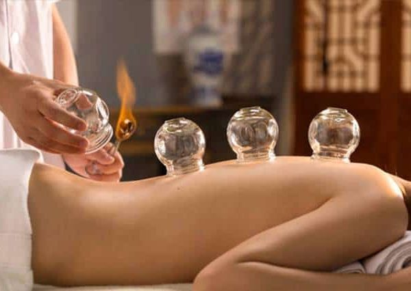 Cupping therapy, everything you need to know