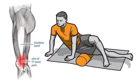 runner's knee exercise