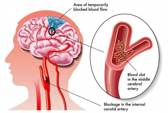 stroke blood blocked flow