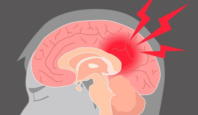 physiotherapy helps stroke