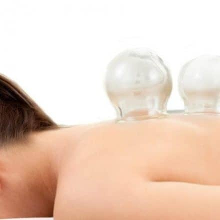 cupping therapy in pickering and milton