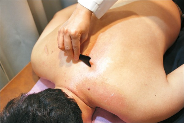 scraping therapy and guasha as part of Traditional Chinese Medicine.