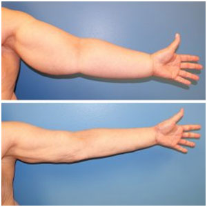 lymphedema physiotherapy